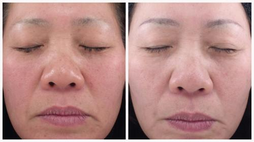Case 8 - Skin Tightening