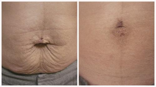 Case 12 - Skin Tightening