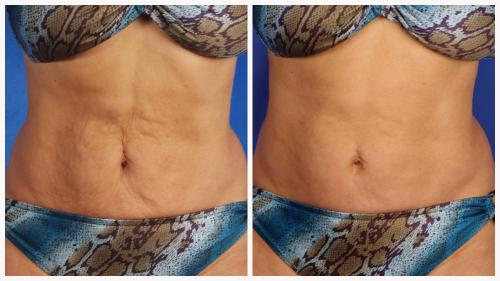 Case 15 - Skin Tightening