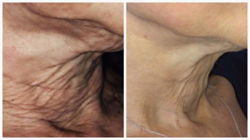 Case 2 - Skin Tightening