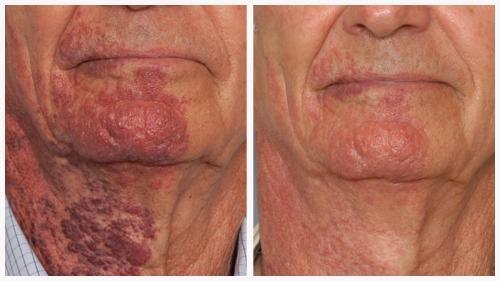 Case 2 - Vascular Lesions