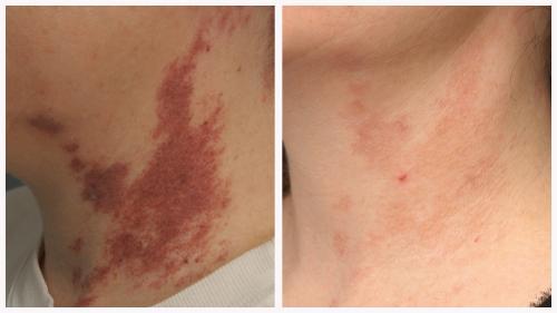 Case 4 - Vascular Lesions