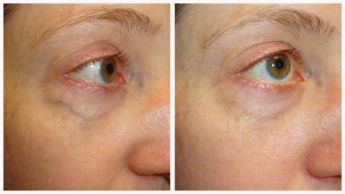 Case 5 - Vascular Lesions
