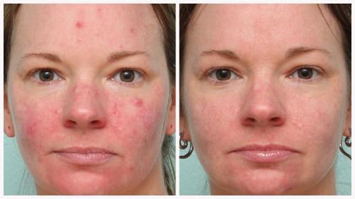 Case 10 - acne