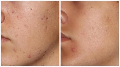 Case 4 - acne