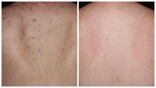 Case 5 - acne