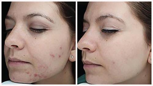 Case 6 - acne