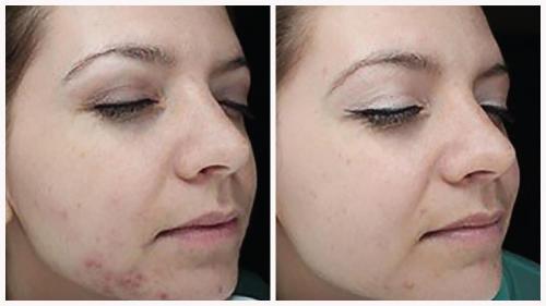 Case 7 - acne