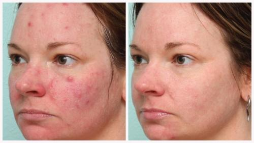 Case 9 - acne & Skin tightening