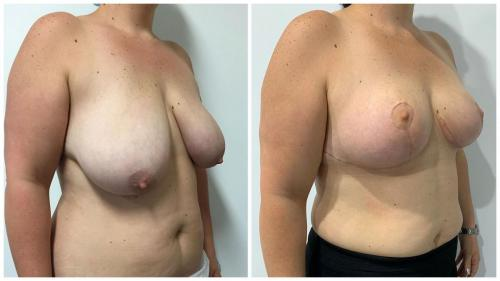 Patient 25, before & afters, breast reduction, angle view