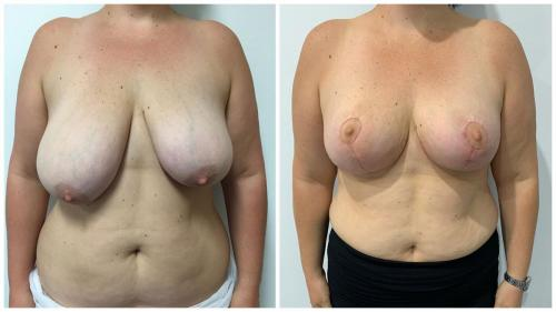 Patient 25, breast reduction surgery in the Gold Coast (Dr Sawhney), front view