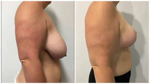 Breast reduction patient 25, Dr Sawhney, side view