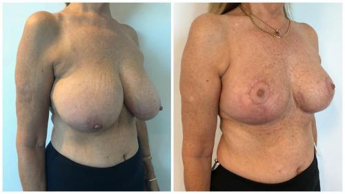 Patient 26 before and after breast reduction with Dr Sawhney, angle view