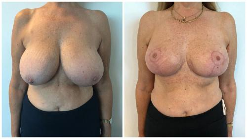 Breast reduction patient 26, front view, Dr Sawhney Gold Coast