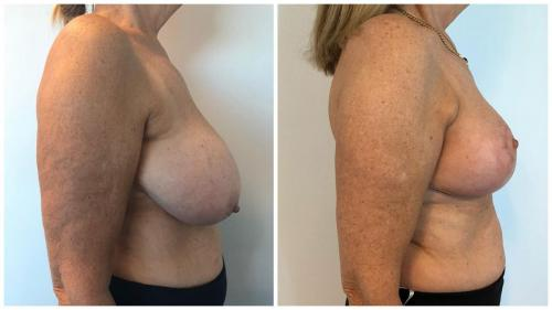 Breast reduction patient 26, before and after, side view