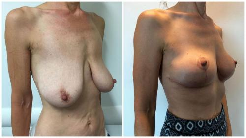 Patient 3 before and after breast lift, angle view