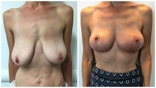 Breast lift patient 3, before & after, Dr Sawhney, front view