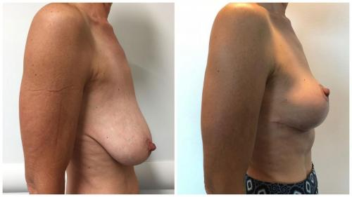 Breast lift surgery (Mastopexy), patient 3, side view
