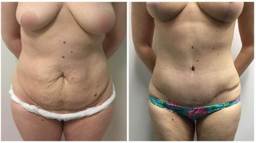 Gold Coast, tummy tuck patient 13, front view
