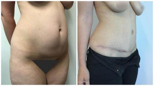 Patient 16 before and after tummy tuck, angle view