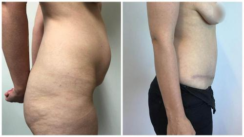 Tummy tuck patient 16, side view, before & afters